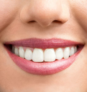 Woman's White Teeth After Zoom Teeth Whitening