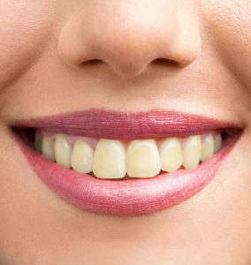 Woman's Yellow Teeth Before Zoom Teeth Whitening Treatment