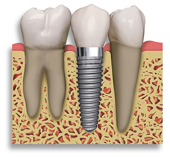 Implant Dentistry Northgate Dental
