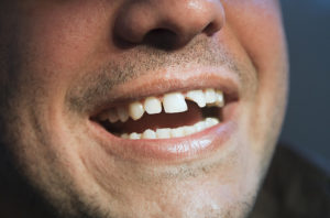 Man With Chipped Tooth, Dental Bonding Is Required