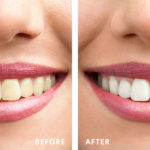 Woman's Teeth Before and After Sinsational Smile Teeth Whitening Treatment