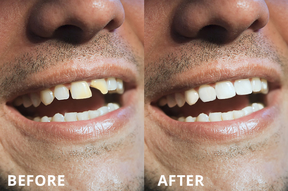 Before and After of a Man With Chipped Tooth, Dental Bonding Is Required