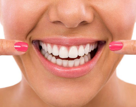 Woman Dental Patient Smiling After Teeth Whitening Procedure
