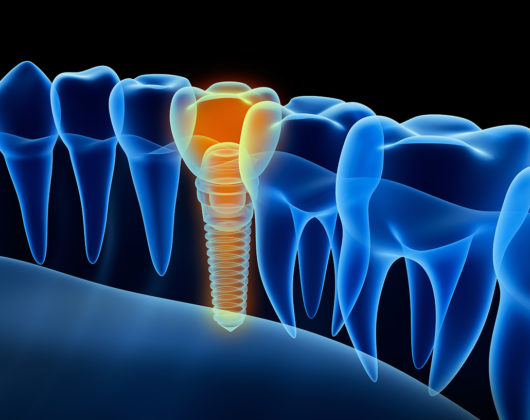 Artist Rendition of Dental Implant Reveals Reveals New Tooth and Titanium Screw