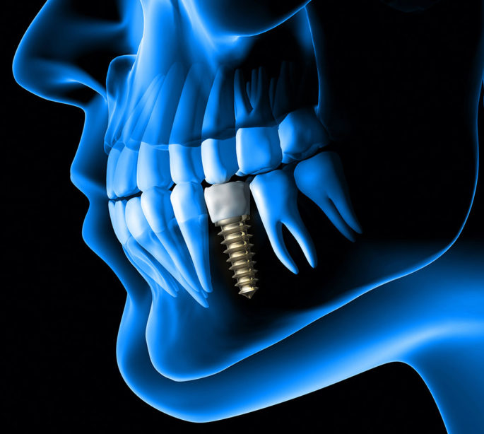 Artist Rendition of Dental Implants Reveals Persons Jaw With New Tooth and Titanium Screw